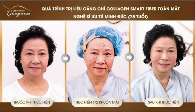 Hình ảnh ngay trước và sau khi căng da của NSND Minh Đức
