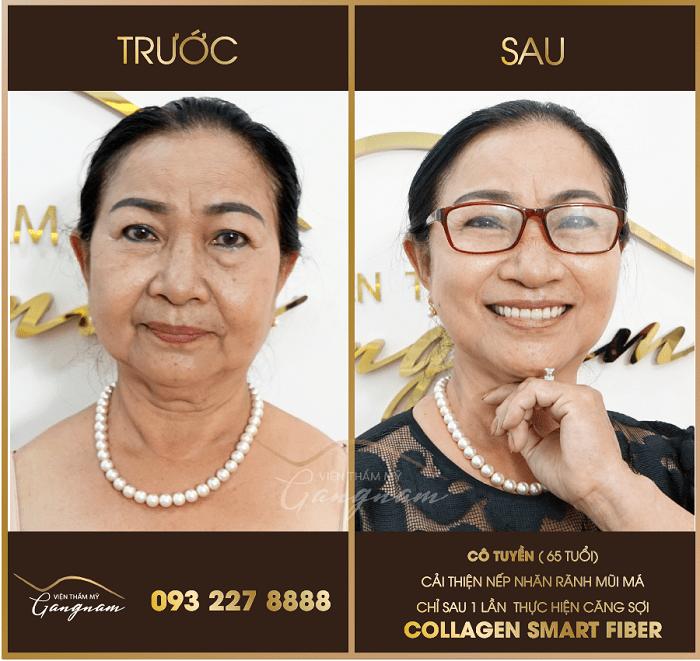 Hình ảnh trước và sau khi trẻ hóa da