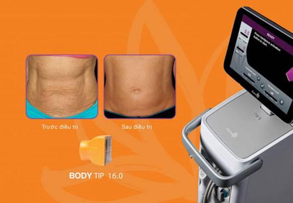 Đầu tip Thermage FLX 16.0 có diện tích tiếp xúc lớn nhất dành riêng cho vùng body
