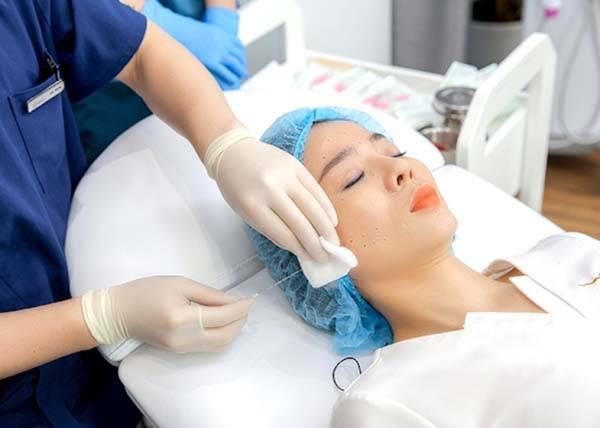 Căng chỉ đòi hỏi kỹ thuật khéo léo là yếu tố quyết định căng da mặt bằng chỉ giá bao nhiêu tiền