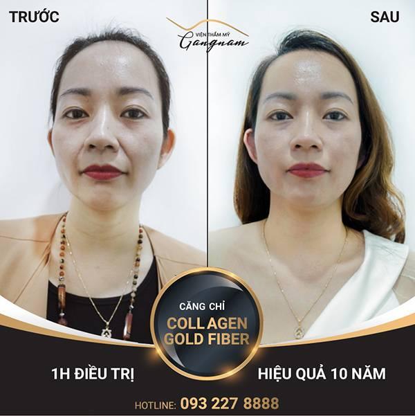 """""""Đánh bay"""" lão hóa, chỉ lai Collagen Gold Fiber giúp chị khách hàng Tú Anh trẻ trung như thuở con gái"""