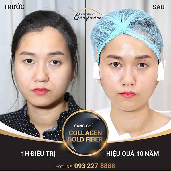 Nếp nhăn xung quanh mắt đã được cải thiện đến 90% sau 1 giờ căng da vùng mắt bằng chỉ Collagen Gold Fiber