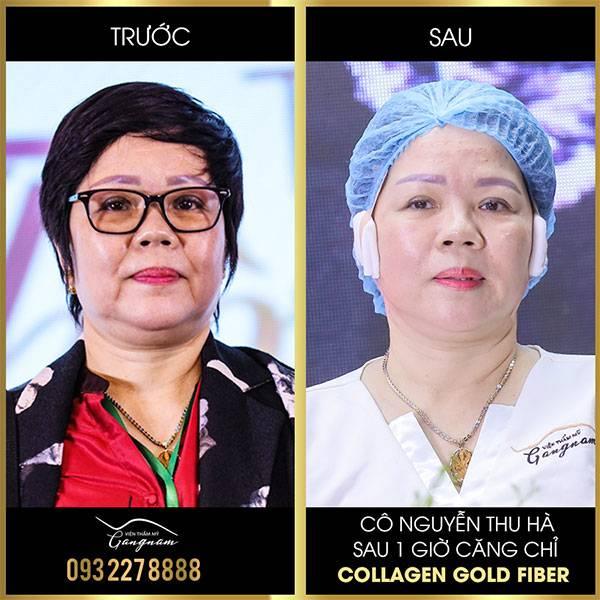 Hình ảnh trước và ngay sau khi thực hiện công nghệ căng chỉ trẻ hoá tại Viện thẩm mỹ Mega Gangnam