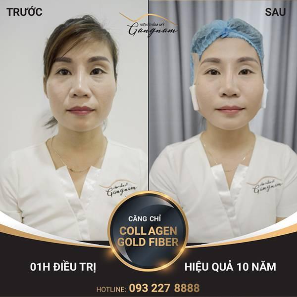 Chị Thảo đã lựa chọn căng chỉ Collagen Gold Fiber để xoá nếp nhăn trên khuôn mặt, đặc biệt là nếp nhăn ở sống mũi