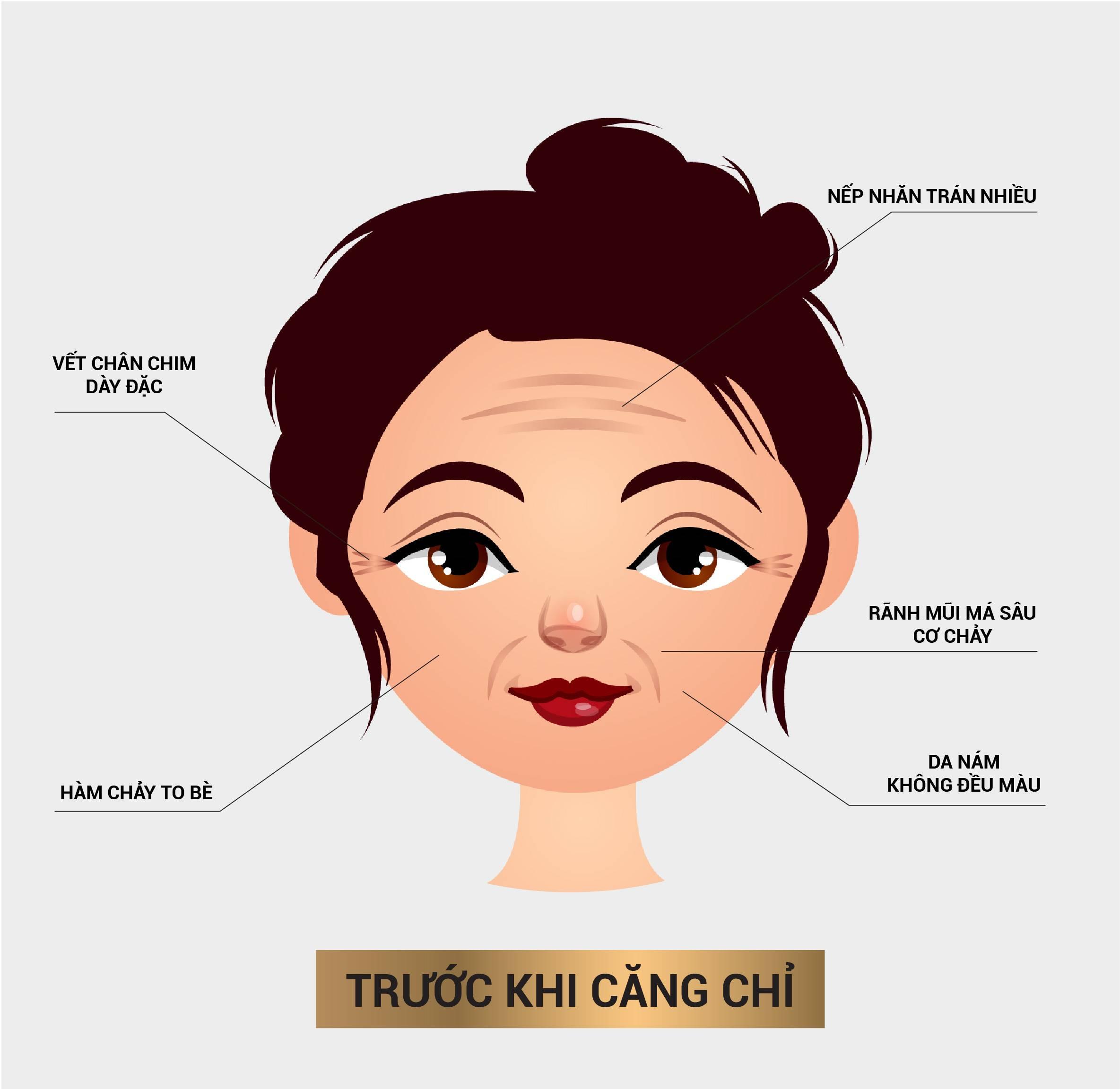 ladi-page-cang-chi-gangnam-qua-trinh-cang-chi