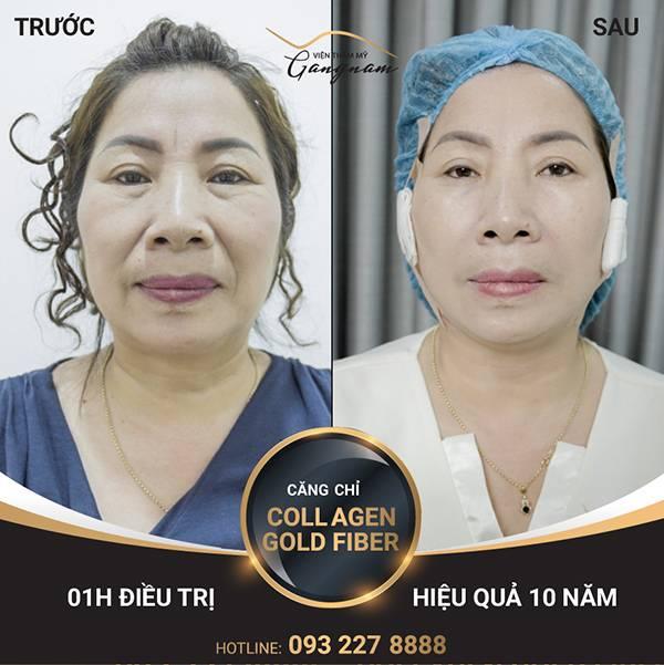 Cô Phương Tuyết trẻ lại nhiều tuổi nhờ công nghệ căng da mặt hiện đại tại Mega Gangnam