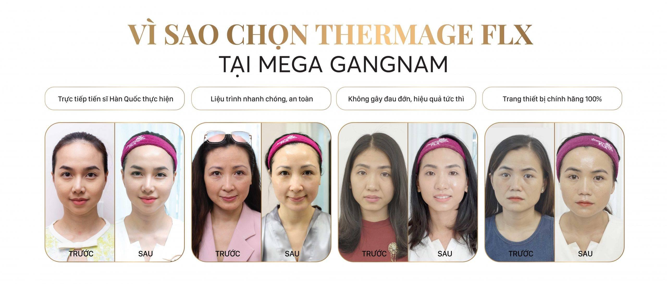 uu-dai-thermage-flx-2