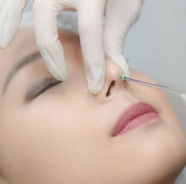 Nâng mũi bằng chỉ không phẫu thuật là phương pháp nâng mũi được ưa chuộng nhất hiện nay